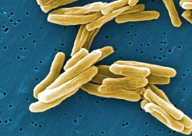 No Mercy For Superbugs From Synthetic Virus