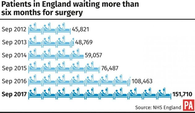 Waiting Six Months For Non-Urgent Surgery 'Could Become The