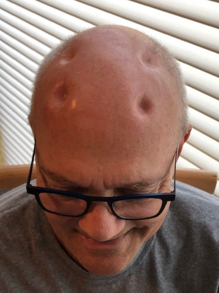 A photo of Felice's head taken in February 2020.