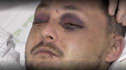 Recibe una brutal paliza al defender a una joven golpeada por su novio en
