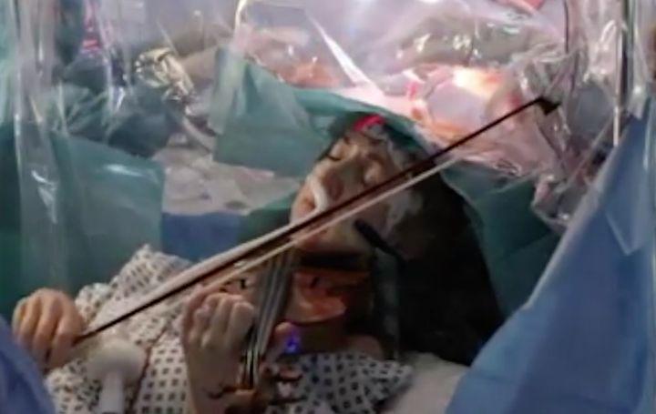 Dagmar Turner plays the violin while British doctors remove a brain tumor.