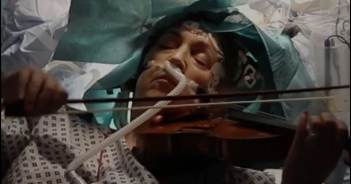 Patient Plays Violin During Brain Surgery In The U.K.