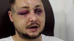 Libertad con cargos para el agresor que pegó a su novia y al hombre que la defendió en
