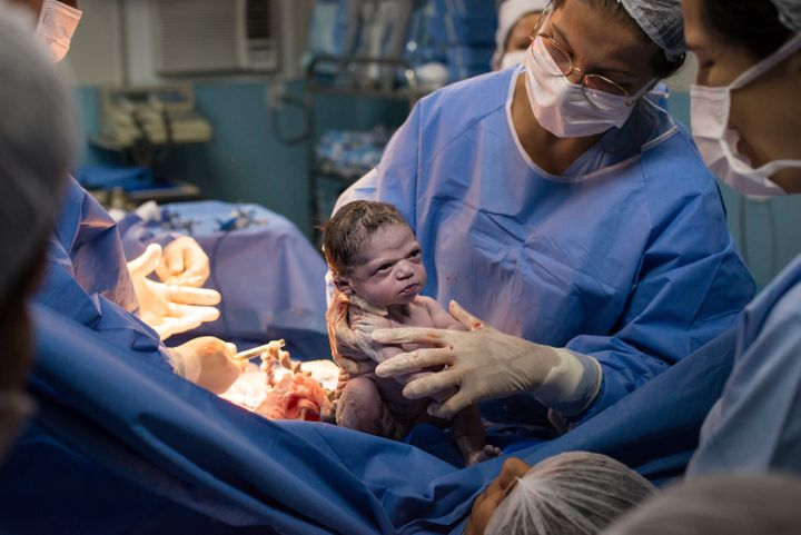 Kuntsmann's viral birth photo quickly became a meme.