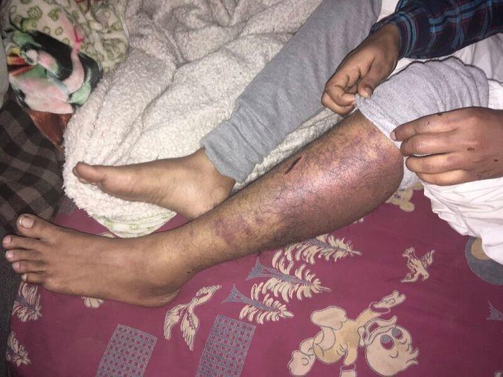 The first eyewitness, who was beaten up along with Faizan, is currently bedridden.