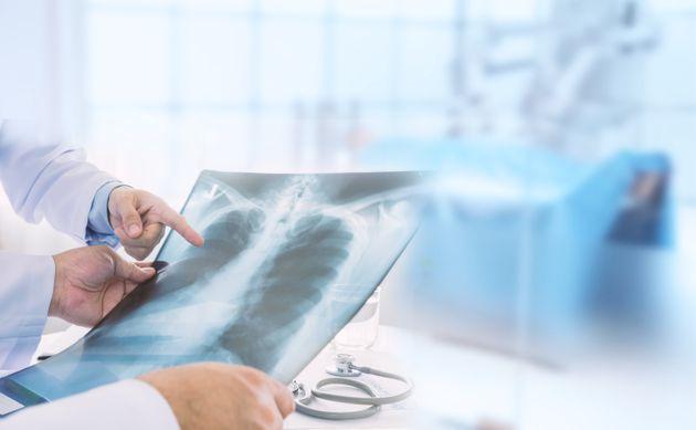 Maladie méconnue, la BPCO est due à une inflammation et une obstruction progressive des