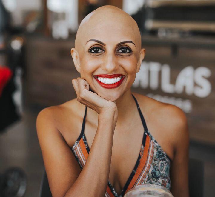 "Supriya Surender writes about alopecia at her blog <a href=""https://www.baldieboo.com/"" target=""_blank"" rel=""noopener noreferrer"">Baldie Boo</a>."