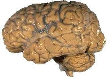 NIH image of human brain. Source: http://lbc. nimh. nih. gov/images/brain. jpg (found on page http://lbc. nimh. nih. gov/osit