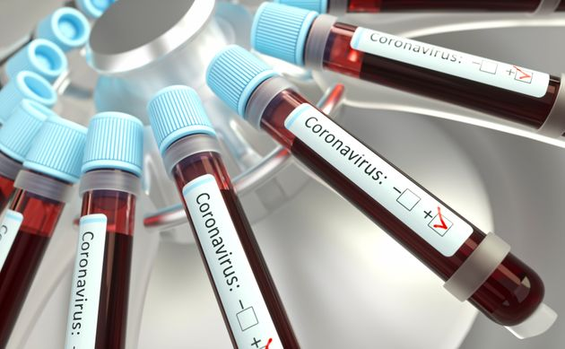 Coronaviruses research, conceptual illustration. Vials of blood in a centrifuge being tested for coronavirus