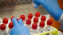 Δοκιμή Γκάφες Ανάπηρος ΜΑΣ Απάντηση Coronavirus