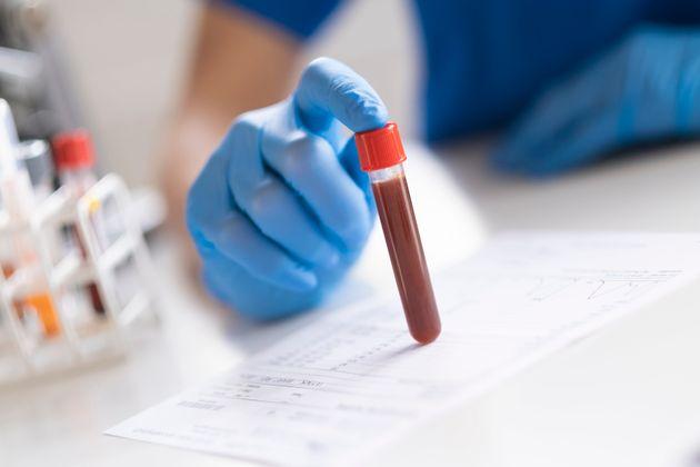 Le sang de patients rétablis pourrait-il aider les personnes atteintes de
