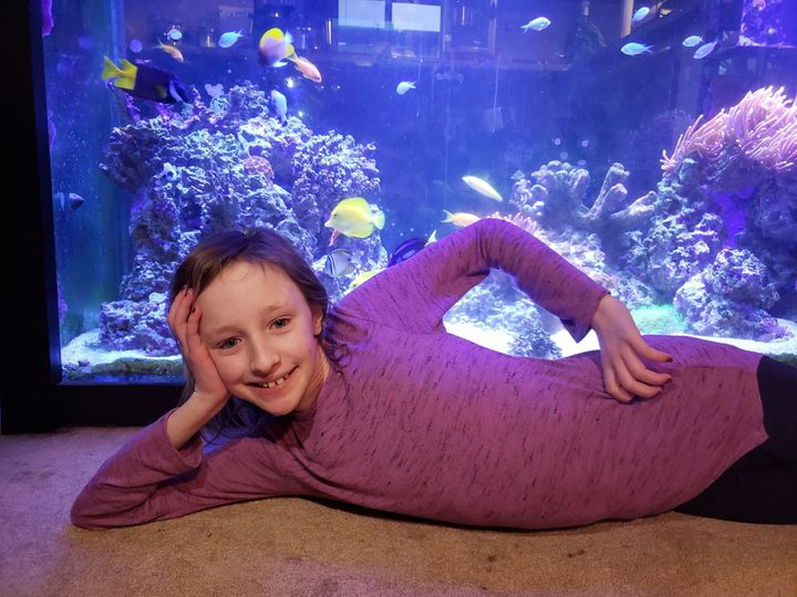 Alexandria Gold, 10, had a liver transplant when she was five-months old.