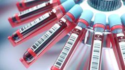 «Έξυπνο» τεστ αίματος ανιχνεύει πάνω από 50 τύπους