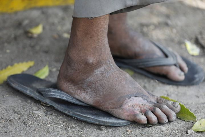 In this Monday, March 30, 2020, photo, an injured foot of a daily wage laborer is seen as he rests on way to his village on t