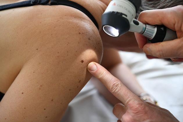 Coronavirus: les dermatologues alertent sur des signes