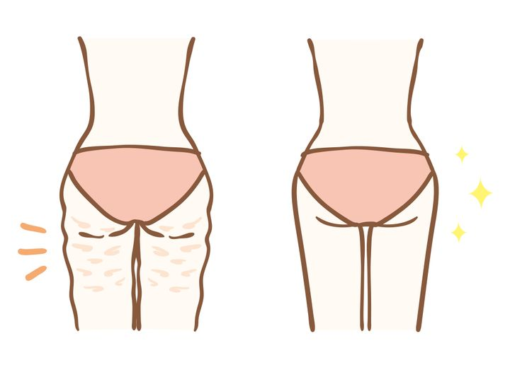 """Topical creams""""may temporarily reduce the appearance of cellulite,"""" dermatologist Zakia Rahman said. Key word: temporarily."""