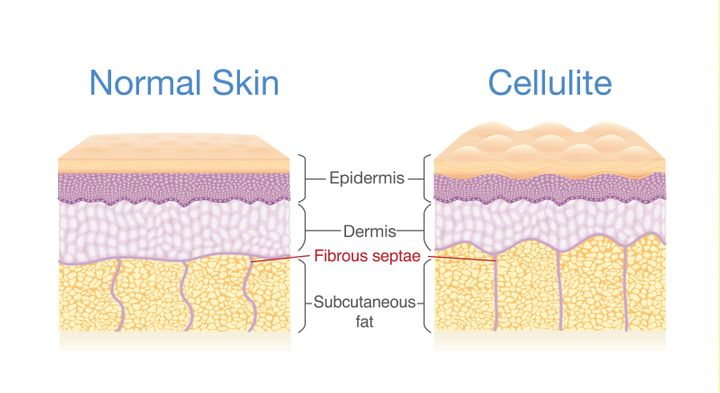 Cellulite forms when the connective tissues (made of collagen) between your muscle and skin squeeze fat cells toward your epidermis, creating a bumpy, dimpled appearance.