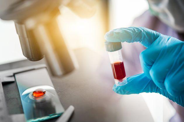Τι είναι τα τεστ αντισωμάτων και πώς μπορούν να βοηθήσουν στην άρση της