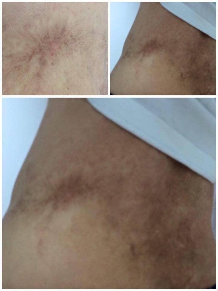 シン氏が自分の体にある拷問の痕跡として公開した写真。シン氏によると、足首に鎖でつながれたまま天井に逆さに吊り下げられた、火で焼かれた跡だという。