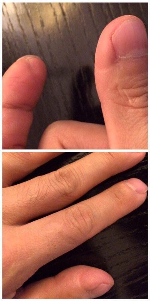 シン氏は爪を全部はがされる拷問を受けたと主張する。この傷は、爪を抜く機械に押しつぶされた痕、爪がはがされて変形した痕、拷問で指が抜けた痕だという。