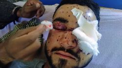 Behind Riyaz Naikoo's Successful Encounter Lie Devastating Stories Of Injured