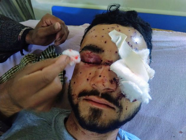 Omar Farooq, a 23-year-old college student, was hit by metal pellets in both eyeson 6 May, 2020...