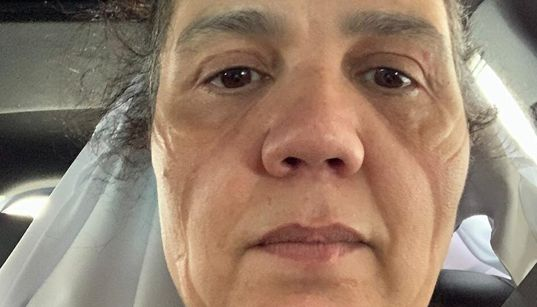 'Dói na alma': A rotina árdua e as marcas desta médica na urgência da covid-19 em