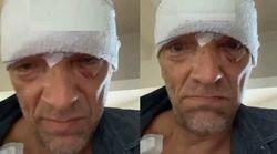 Testa fasciata, occhi pesti e ammaccature: Vincent Cassel si mostra dopo un