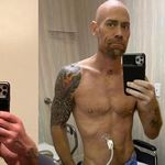 Nurse Who Survived COVID-19 Shares Jaw-Dropping Photo Of What It Did To His