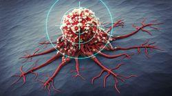 Il rischio di metastasi tumorali è scritto nel Dna fin dalla