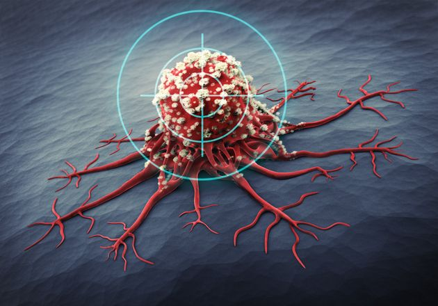 3D Rendering of a cancer cell - medical