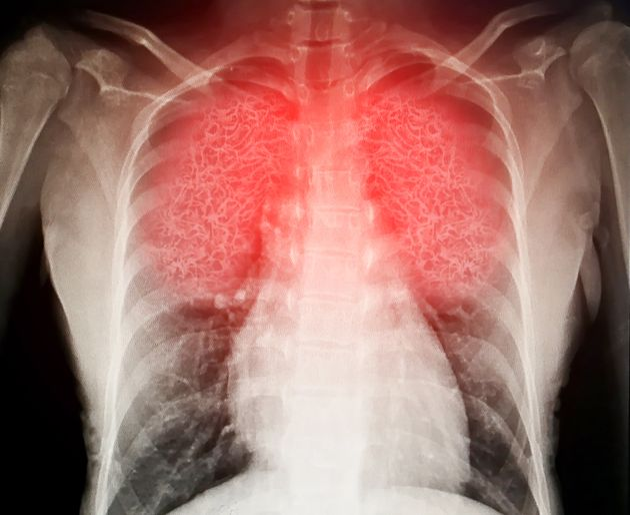 Francesco, 18 anni e i polmoni