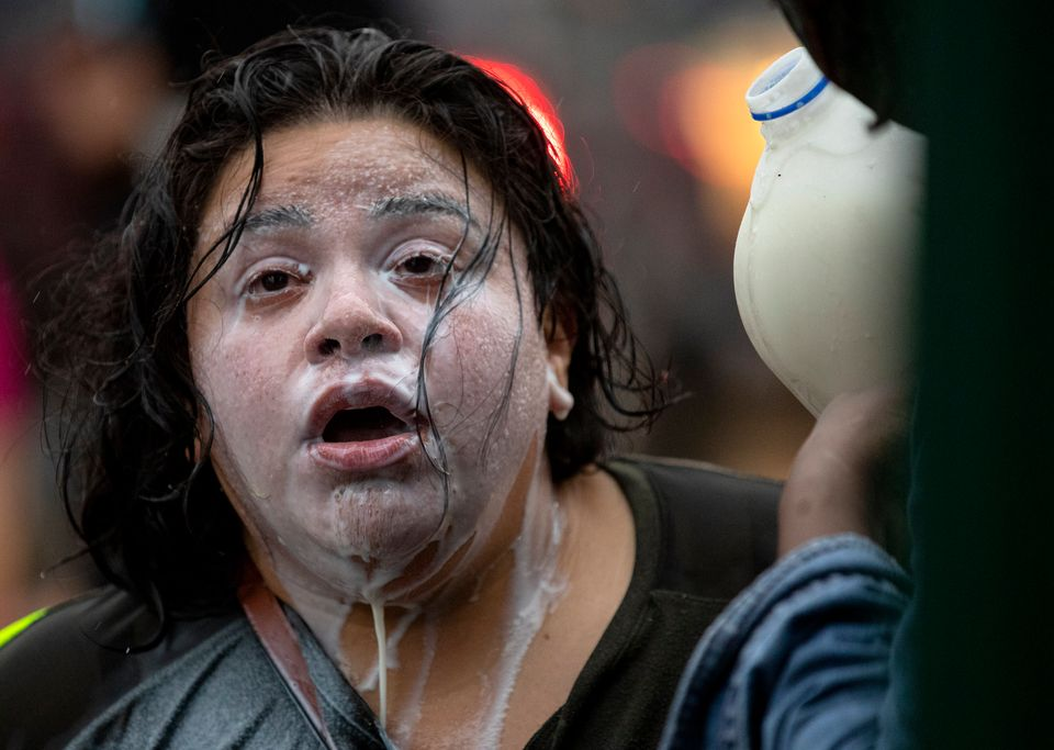 Milk drains from the face of a protester who had been exposed to percussion grenades and tear gas outside...