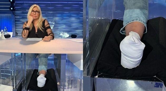 """Mara Venier in diretta con un piede rotto: """"Sono caduta dall"""