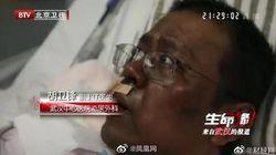 코로나 치료 중 얼굴 검게 변한 우한 의사가