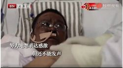 Πέθανε ο γιατρός της Γουχάν που είδε το δέρμα του να μαυρίζει λόγω θεραπείας
