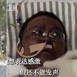 È morto il medico di Wuhan che si era risvegliato con la pelle nera dopo il