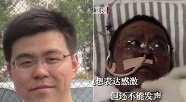 È morto il medico di Wuhan che si era risvegliato con la pelle nera dopo il covid