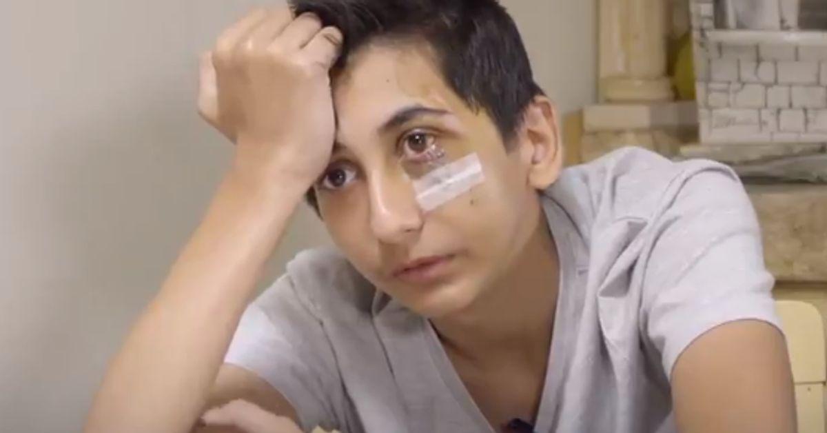 Le jeune Gabriel, défiguré après une interpellation, s'exprime pour la première fois