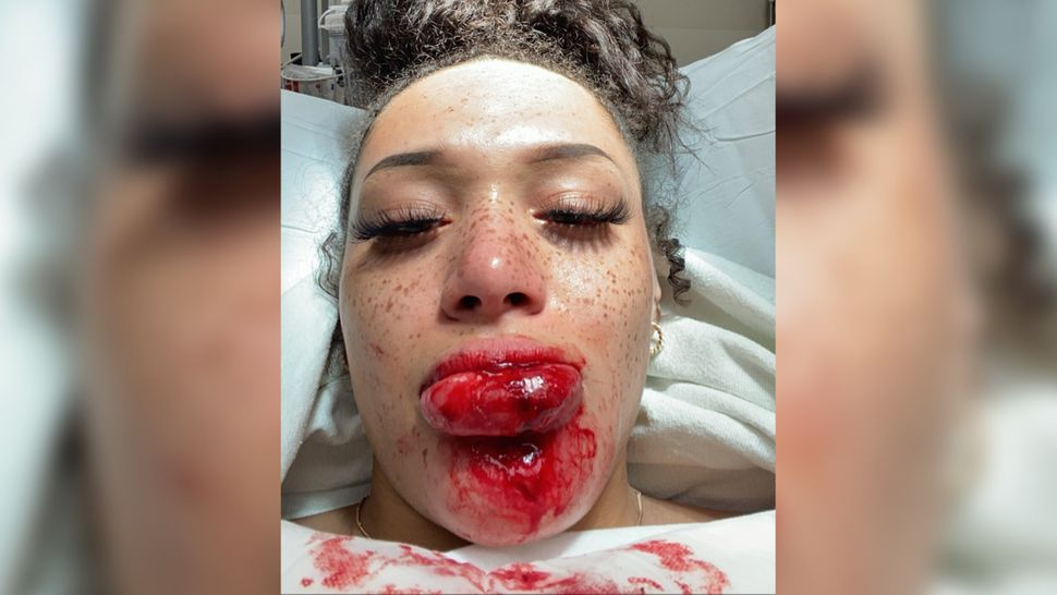 Amara Green took this selfie at an emergency room in Minneapolis about an hour after police shot her with a rubber bullet whi