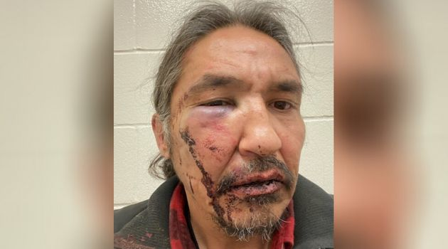 Chief Allan Adam of Athabasca Chipewyan First Nation is pictured here with a swollen eye and bloody face...