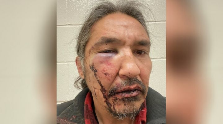 Chief Allan Adam of Athabasca Chipewyan First Nation is pictured here with a swollen eye and bloody face from a mouth laceration, after his encounter with RCMP in Fort McMurray, Alta. on March 10, 2020.