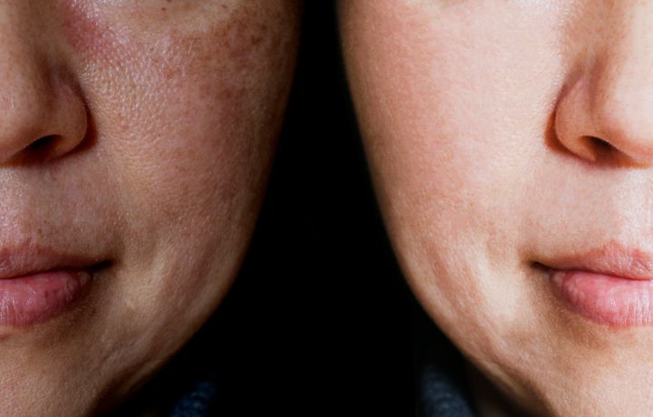 Melasma most commonly appears on the forehead, upper lip and cheeks, and women are more prone to the condition than men. The photo on the left is without makeup, and the photo on the right is with makeup.