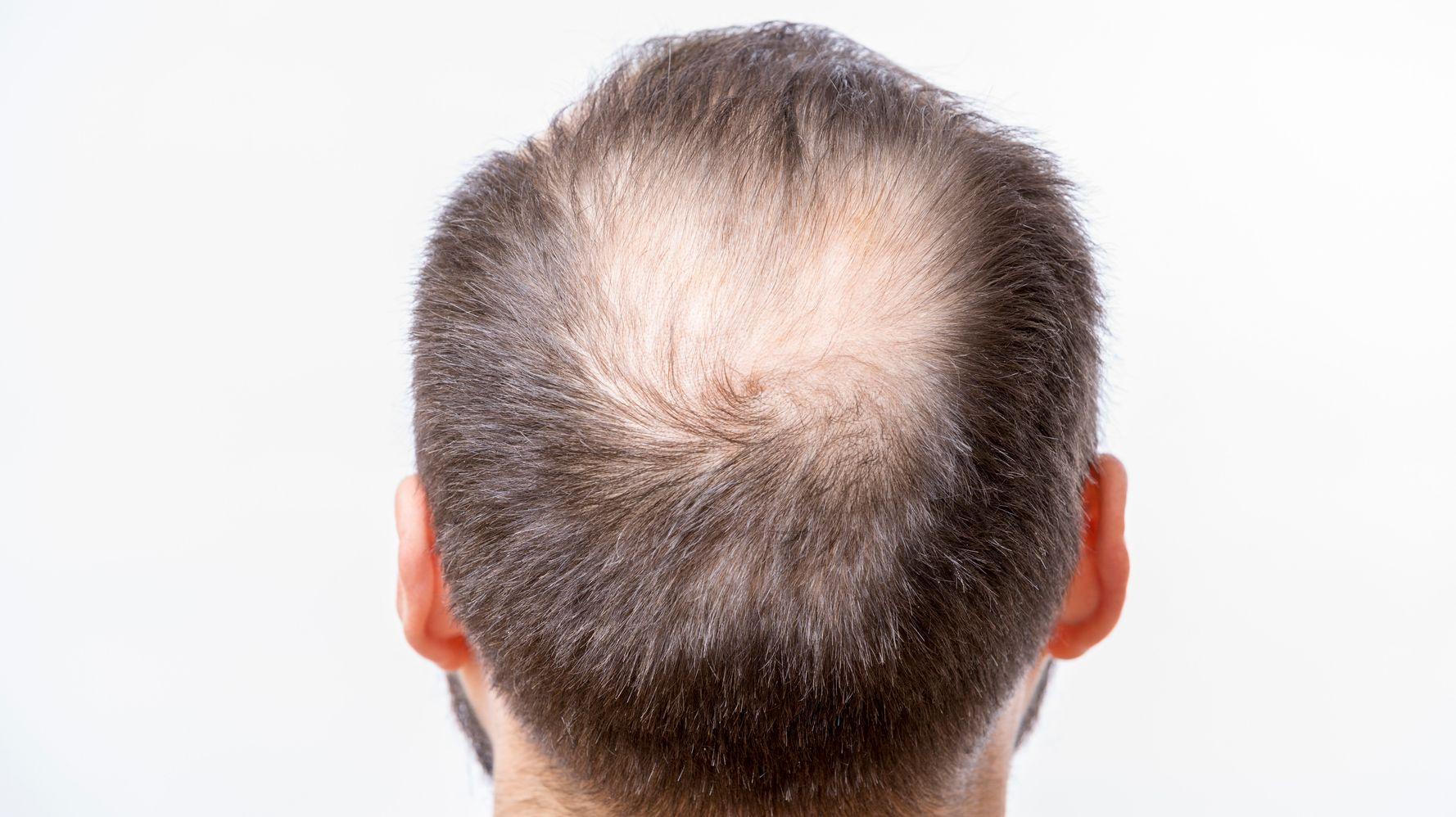 Alopecie Calvitie Pelade 10 Mythes Et Realites Sur La Perte De Cheveux Huffpost Quebec Vivre