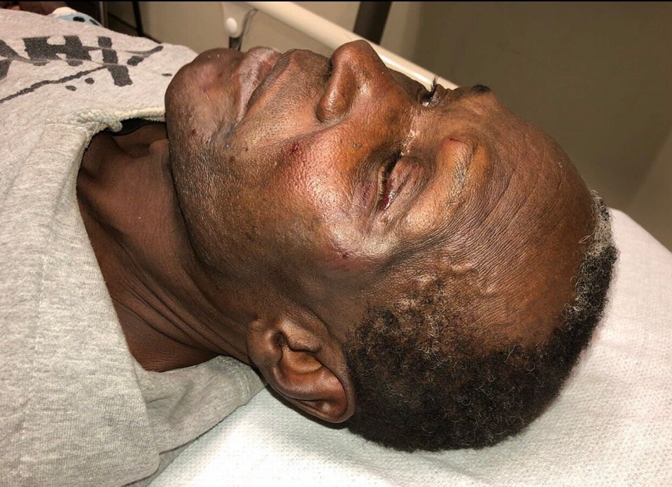 A photo of Livingston Jeffers shows bruising on his face following an altercation with police in Ajax,...