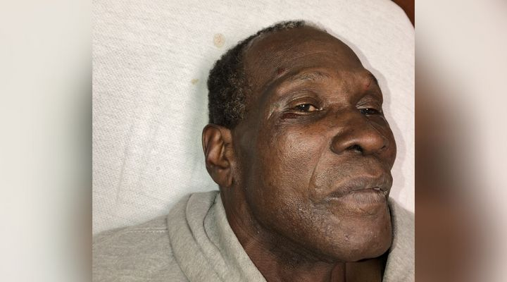 Livingston Jeffers experienced facial swelling after his violent arrest, as shown here in an Ajax, Ont. hospital, on Oct. 31, 2018.