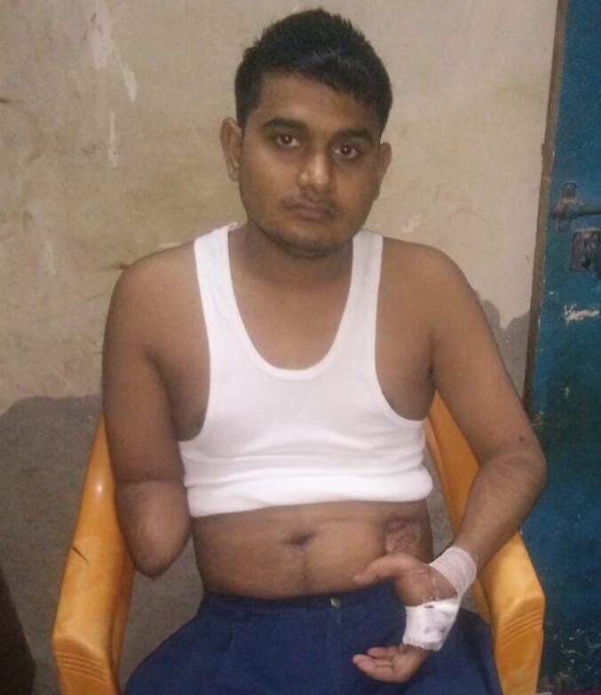 The experience of 22-year-old tailor Mohammad Akram Khan shows what happens when critical treatment of a survivor of communal violence is discontinued midway as a major publichospital is converted into a COVID-19 facility.