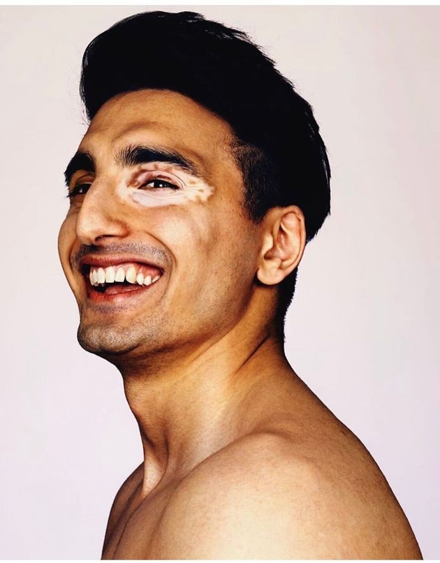 On World Vitiligo Day 3 Young British Asians Show Their Skin Some Love
