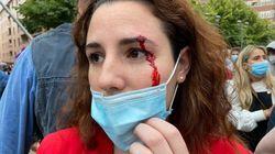Pablo Echenique dice que la herida de Rocío de Meer (Vox) es