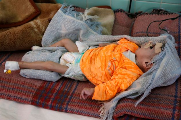 A malnourished infant at a hospital in Sanaa, Yemen, in the fall of 2019. Mass hunger in the country...